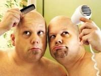 Почему выпадают волосы у мужчин? В чём причины?